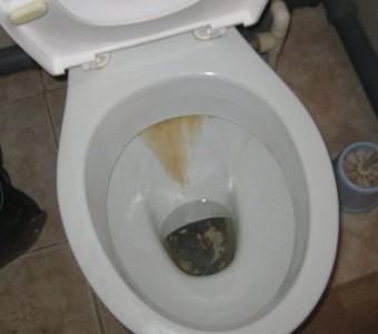 Как почистить унитаз от мочевого камня и ржавчины